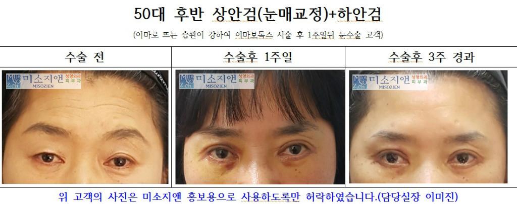 50대후반 상안검눈매교정,하안검.jpg