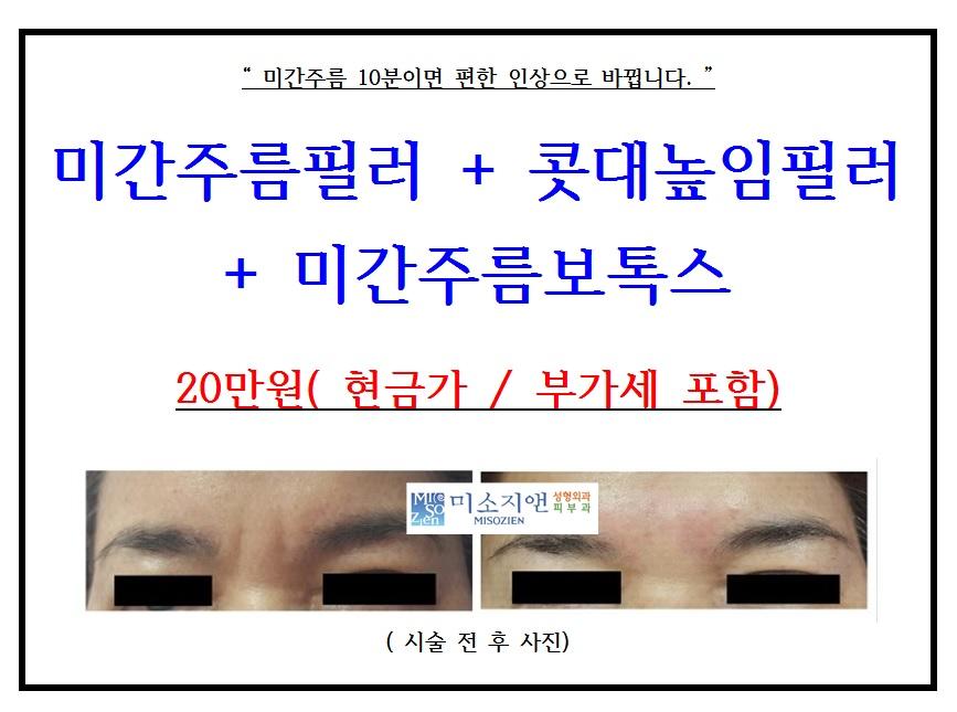 미간주름필러(홍보).jpg