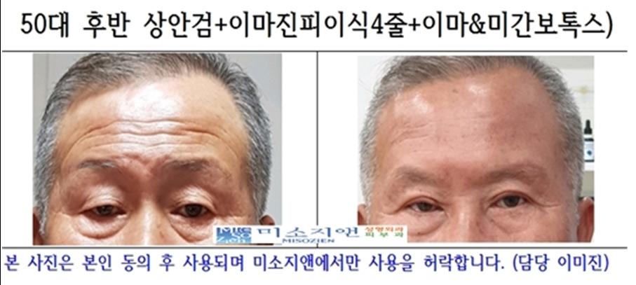 이마진피이식4줄+상안검 모델.jpg
