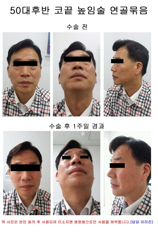 50대 코끝높임술(연골묶음).jpg
