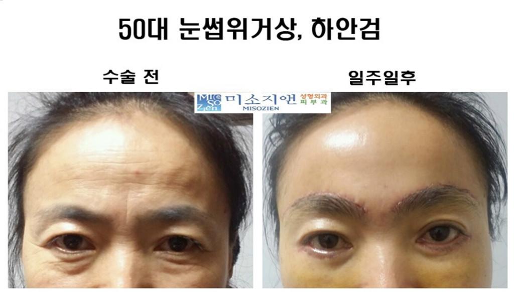50대1 눈수술.jpg