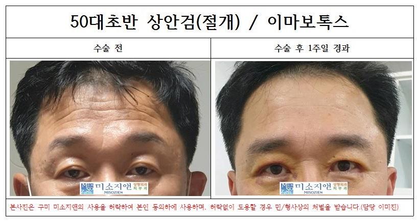 50대남자상안검.jpg