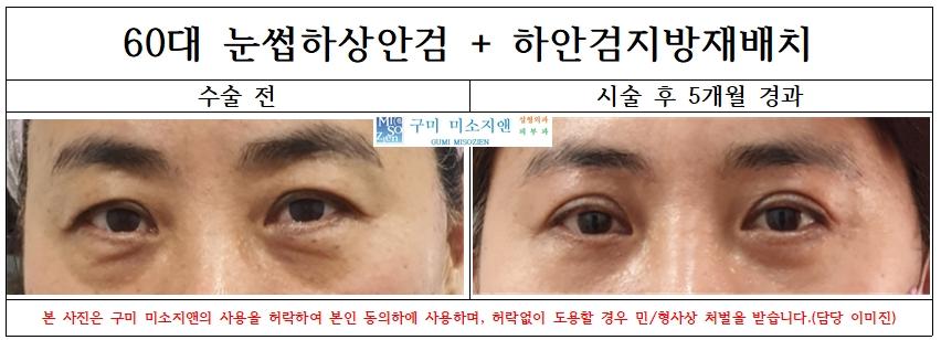 60대 눈썹하상안검+하안검지방재배치술.jpg